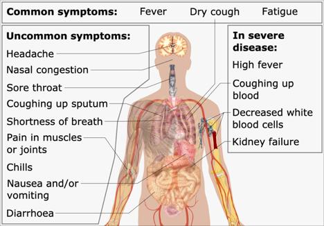 Symptoms of Coronavirus disease COVID – 19 VIT Bhopal  - Best University in Central India -  image-4